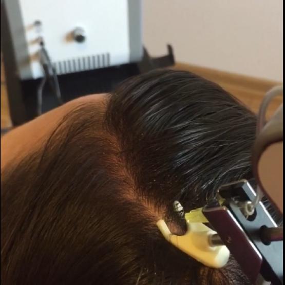 genetyczne wypadanie włosów u mężczyzn